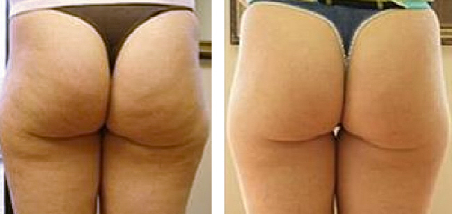 Anti Cavitation Trim in addition Orlando Laser Lipo Ultrasound Cavitation Before After Photos also So Then Guys Whats The Crack also Before After Shots as well How Does U Lipo Works. on body cavitation