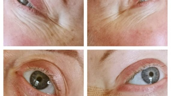 Skin Tag Removal With Plasma Pen Feature Perfect Semi Permanent Make Up Plymouth